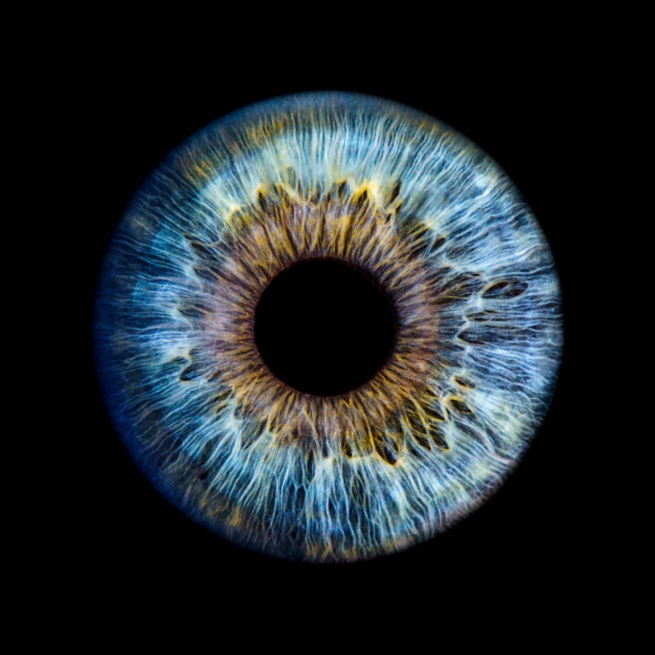 Iris dunkler die ring um Irisdiagnose für